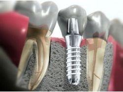 Анкерный штифт в стоматологии фото