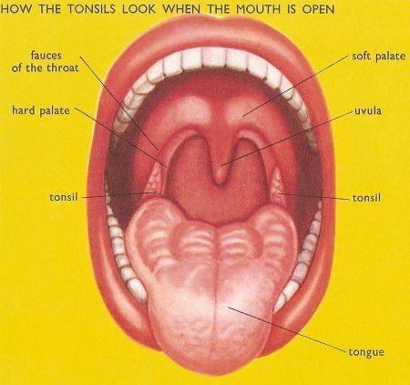 Как лечить красное горло у ребенка 2 лет форум
