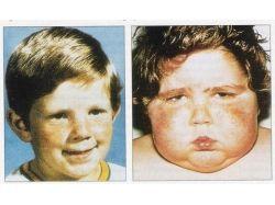 Иценко кушинга болезнь фото 5