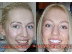Алкоголь фото до и после 2