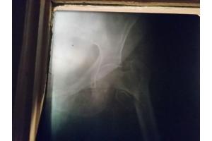 Перелом бедра фото
