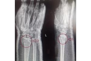 Перелом лучевой кости фото