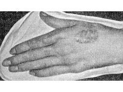 Высыпания на руках у детей с картинками 5