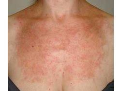 Аллергия на порошок у детей фото