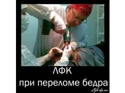 Перелом голеностопа фото 3