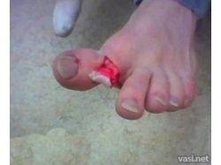 Перелом пальца на ноге фото