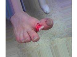 Перелом пальца на ноге фото 2
