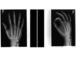 Перелом пальца на ноге фото 6