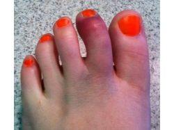 Перелом пальца на ноге фото 7