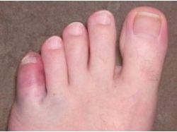 Перелом пальца на ноге фото 8