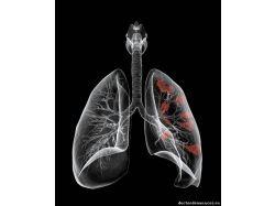 Аллергия в картинках 5