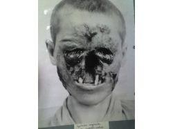Картинки больные дети