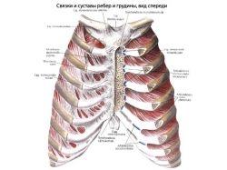 Перелом ребра фото