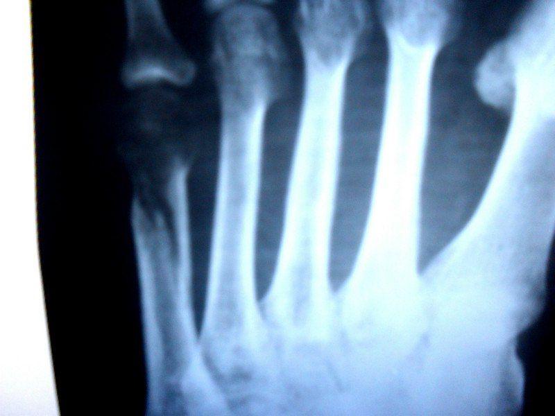 готика девочка перелом диафиза 5-й плюсневой кости старший инспектор