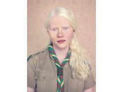 Альбиносы фото люди