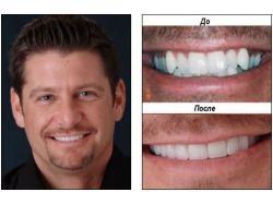 Красивые зубы картинки 2