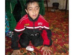 Фото дети инвалиды 3
